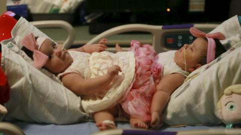 Texas surgeons separated cojoined baby twins