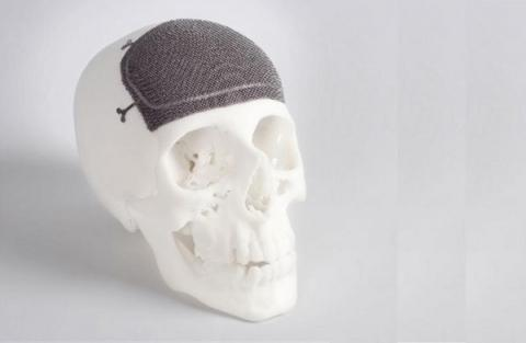 First 3-D printed implants tailored specifically to individual's anatomy