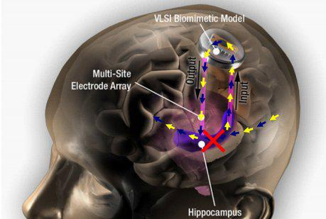 New startup aims to commercialize brain prosthetic to improve memory