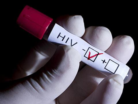 Team develops a biosensor able to detect HIV only one week after infection