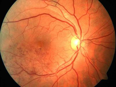 Scientists Have Created an Artificial Retina Implant That Could Restore Vision to Millions